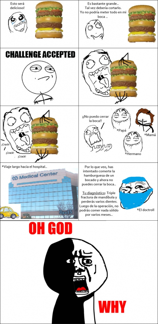 comer,fractura,hamburguesa,mandibula,oh god why