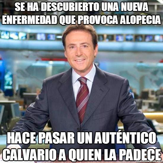 Meme_matias - Enfermedades alopécicas