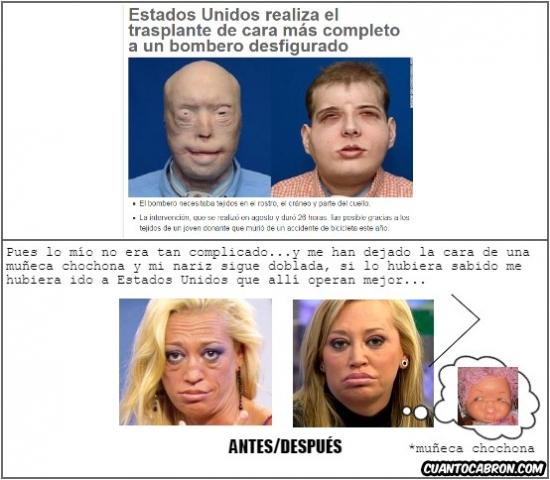 Otros - Hasta un trasplante de cara en cualquier persona sale mejor que las operaciones de Belén Esteban