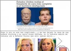 Enlace a Hasta un trasplante de cara en cualquier persona sale mejor que las operaciones de Belén Esteban