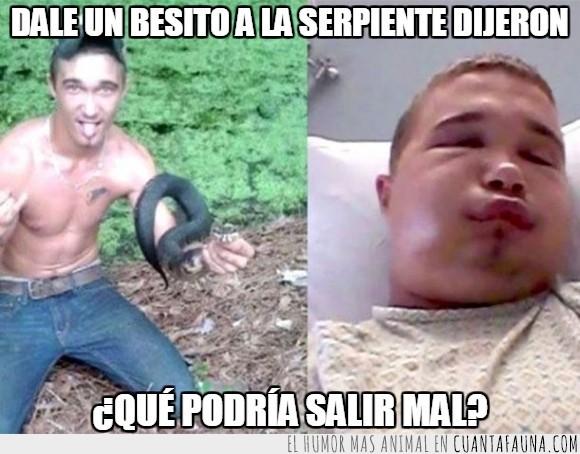 Austin Hatfield,Estados Unidos,hospital,morder,picar,serpiente,serpiente venenosa,víbora boca de algodón