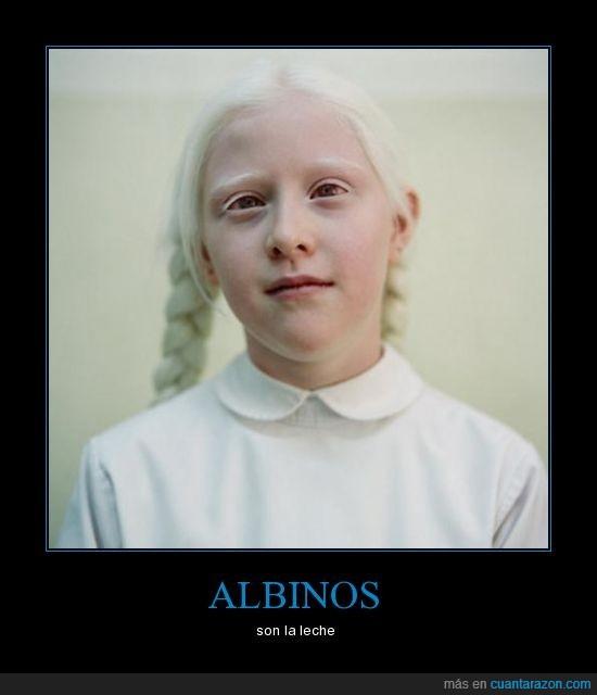 albinos,leche