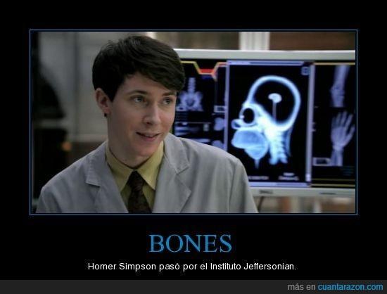bones,cerebro pequeño,homer simpson,huevo de pascua,jeffersonian,radiografia