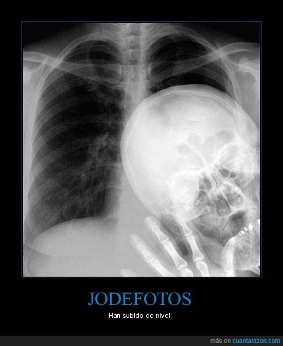 jodefotos,radiografía