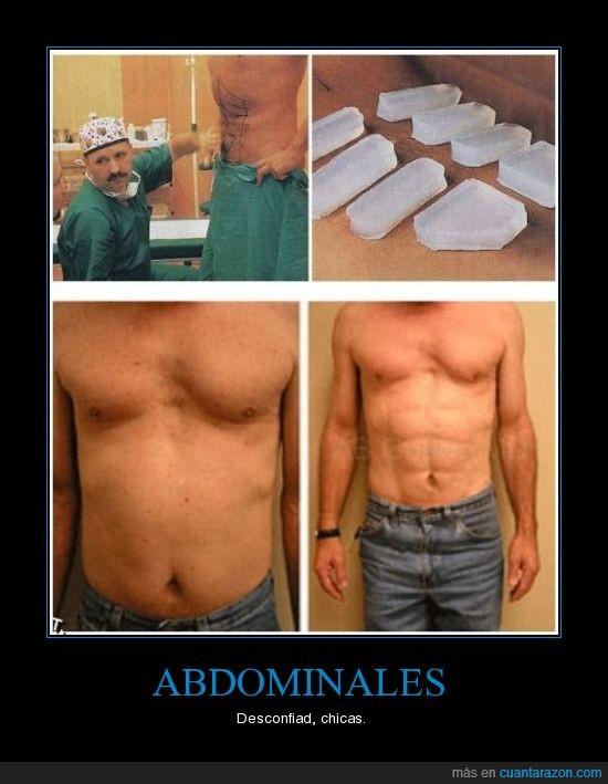 abdominales,cirugía,falsos