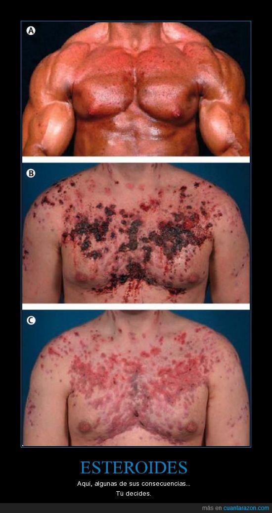 consecuencias,esteroides,piel enferma