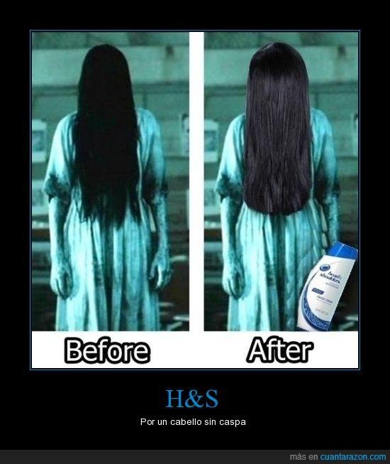 H&S,niña,pelo,the ring