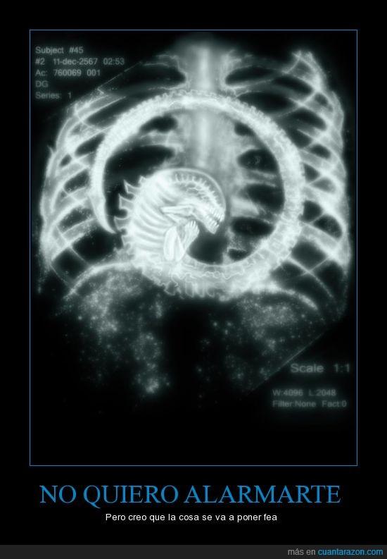 alien,parasito,radiografia,rayos x,torax
