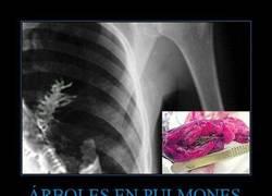 Enlace a ÁRBOLES EN PULMONES