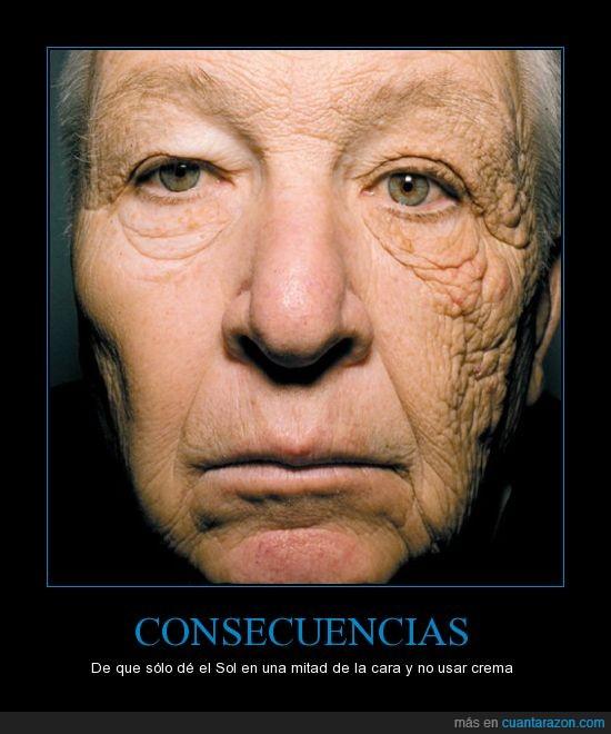 cara,crema,dermatoheliosis unilateral,envejecimiento,protección,rayos UV,sol