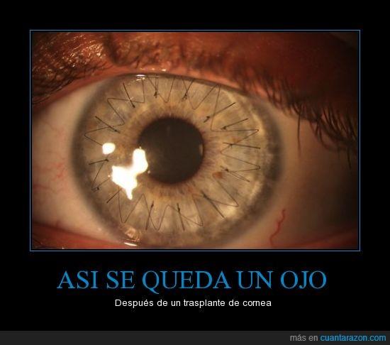 cornea,hilo,iris,ojo,punto,transplante