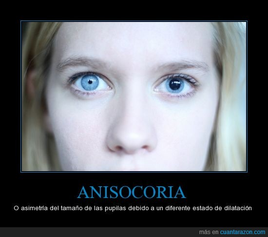 anisocoria,asimetria,chica,curiosidades,genetica,medicina,ojos,pupilas,tamaño,wikipedia