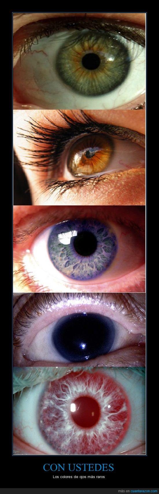 color,genetica,humano,ojos,raro