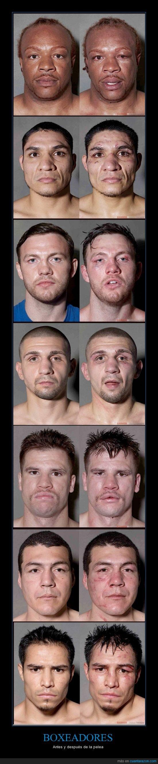 boxeo,car,deformar,hinchado,hostia,morado,sagre