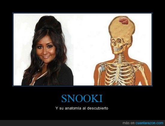 cerebro,cráneo,huesos,moño,pelo,Snooki