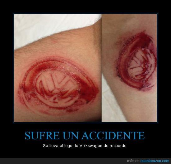 antebrazo,brazo,herida,tatuaje,volkswagen