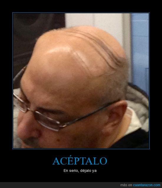 aceptar,calvo,complejos,peinarse,pelo