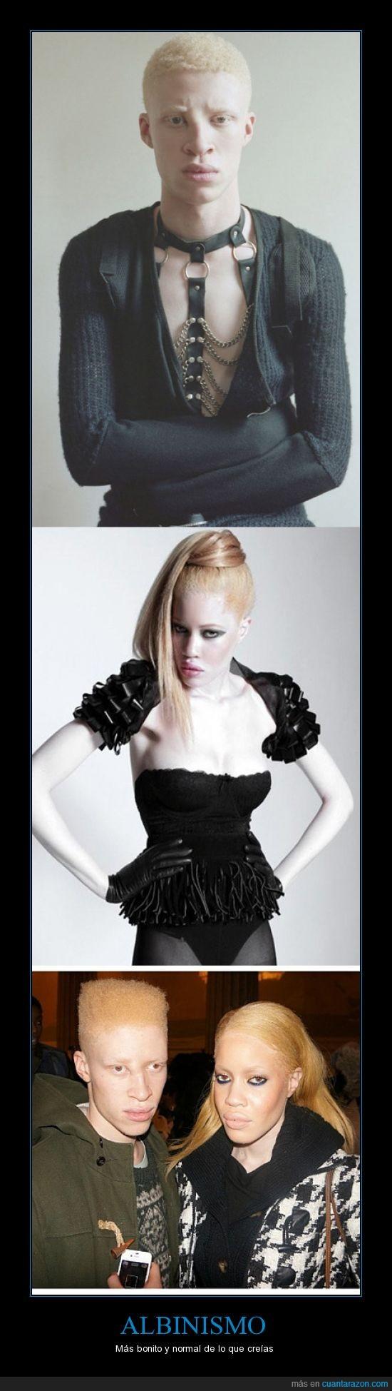 albinismo,albino,belleza,diandra forrest,moda,modelo,pasarelas,shaun ross