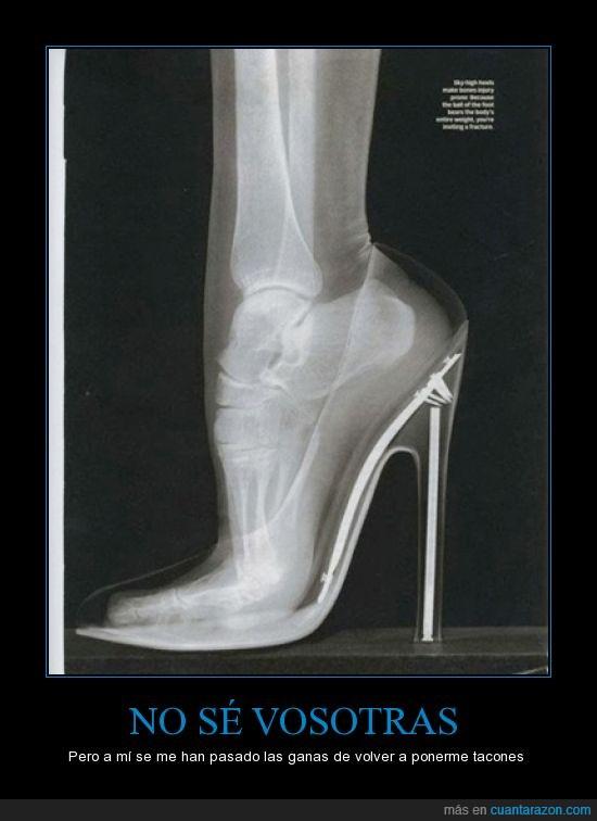 dolor,hueso,malo,pie,posicion,radiografia,tacon