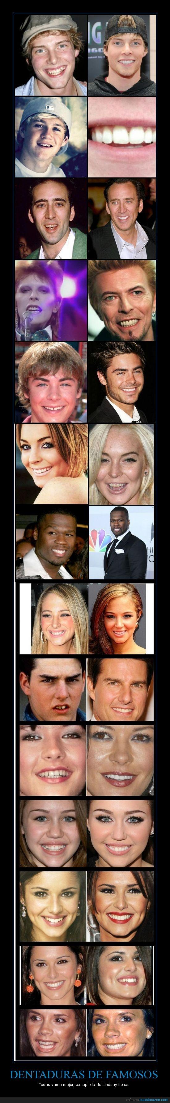 antes,blanquemaiento,Catherine Zeta-Jones,después,dientes,Hunter Parrish,Lindsay Lohan,Miley Cyrus,Niall Horan,Nicolas Cage,ortodoncia,Tom cruise,Zac Efron