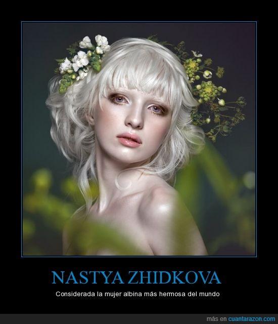 albina,albinismo,guapa,modelo,mujer,Nastya,preciosa,rusa,Zhidkova