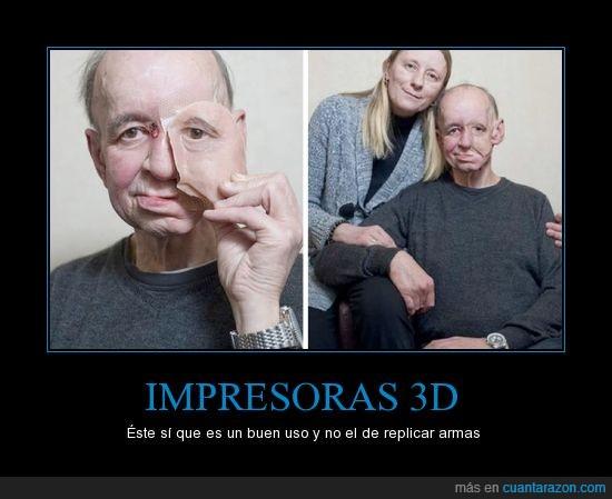 3D,agujero,ayuda,impresoras,protesis,rostro,tumor