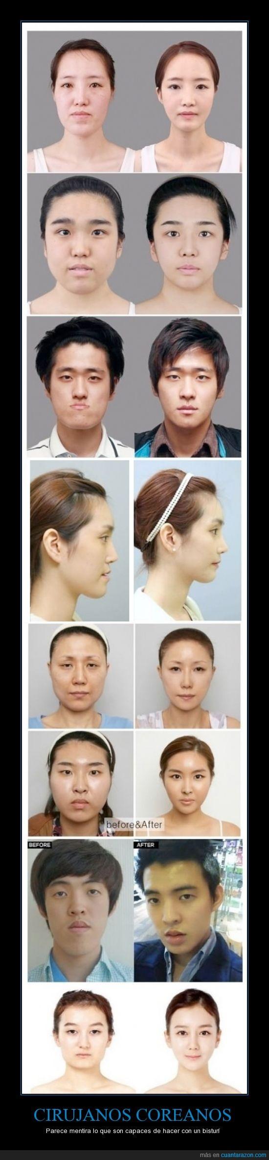 cirujias,feos,guapo,increible,korea,mandibula,operacion,plasticas