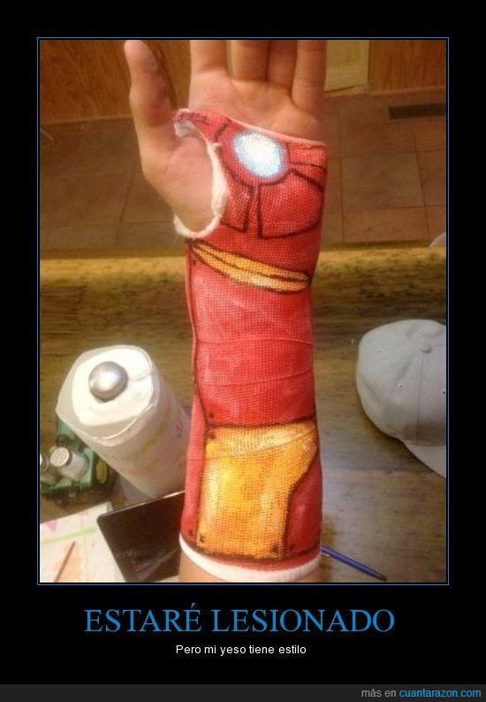 brazo,escayola,ironman,mano,pintado,roto,venda,vendaje,yeso