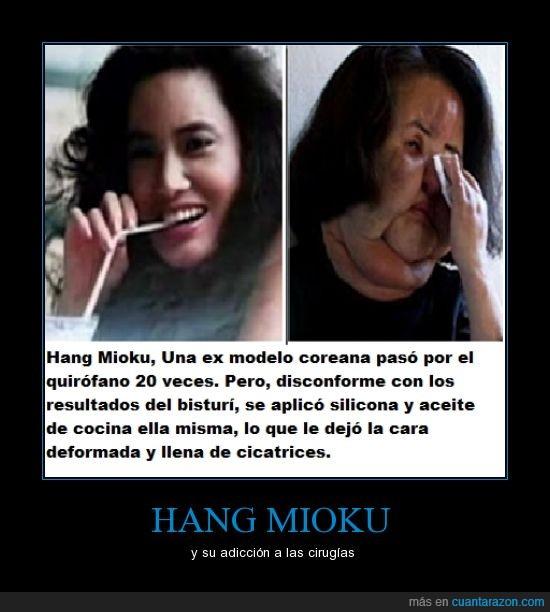 cirugia,dinero,hang mioku,modelo,mujer,operacion,silicona