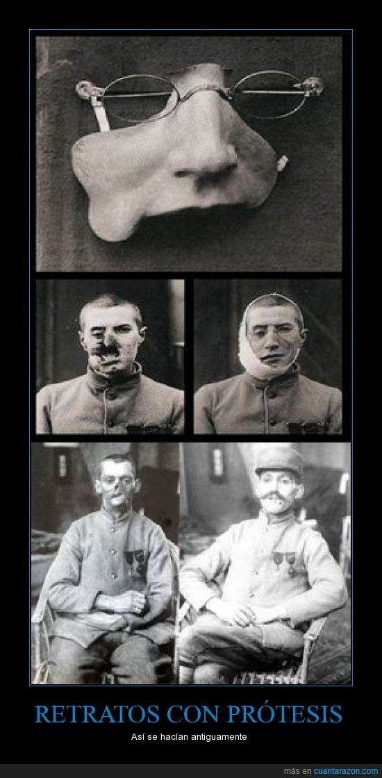 impresionante,prótesis,Retratos antiguos,soldado