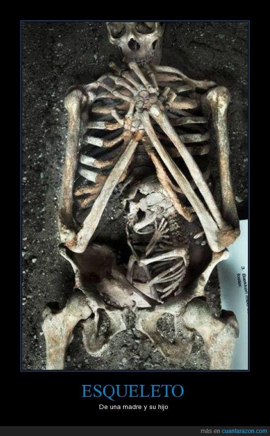 dentro,esqueleto,feto,hijo,madre,nacer