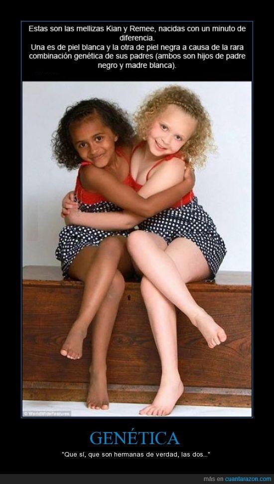 blanca,curioso,genética,hermanas,mellizas,negra,padres