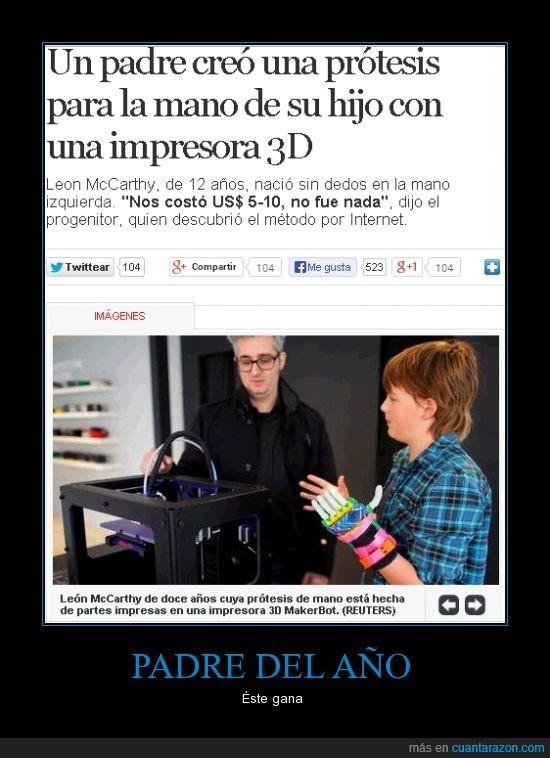 hijo,impresora 3d,noticia,padre,protesis