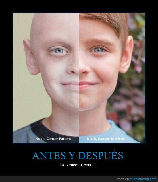 antes y despues,cancer,niño,noah,vencer