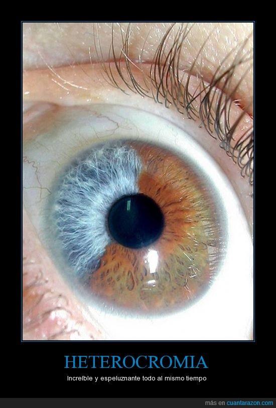 azul,café,heterocromia,marron,Ojo