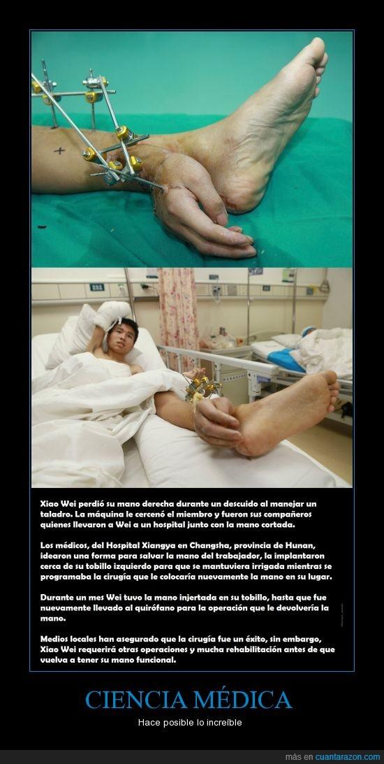 actualidad,china,Ciencia médica,increible,mano,posible,tobillo,Xiao Wei