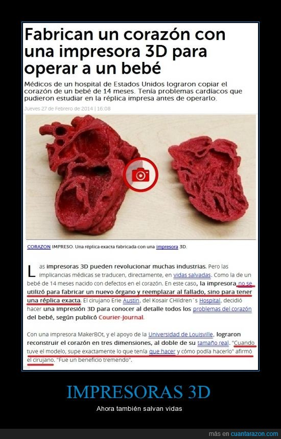 3d,bebe,corazon,implante,impresora,operacion