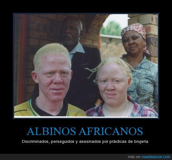 Tanzania África Albinos Mutilados Discriminación