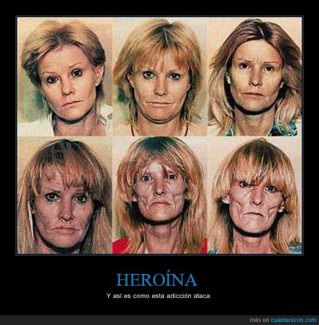 adicta,cara,destrucción,drogas,empeorar,heroina,mujer,paso del tiempo,peso