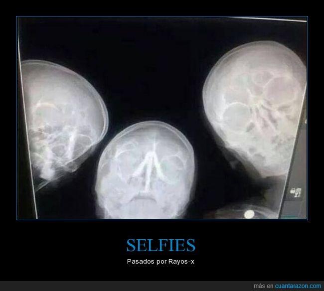 calaveras,esqueletos,humor,radiólogos,rayos x,selifie