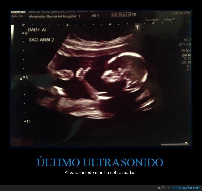 bebé,ecografía,feliz,feto,gestación,imagen,okay,pulgar,tranquilo,ultrasonido