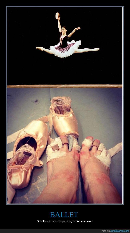 arte,bailarina,baile,ballet,dolor,heridas,pies