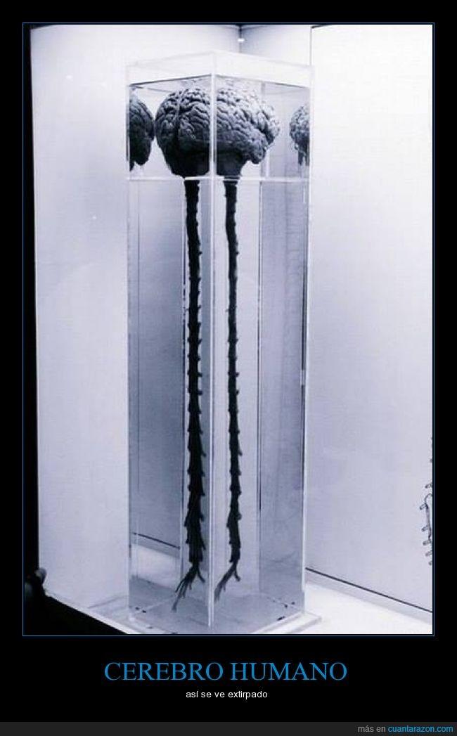 cerebro,columna,foto,médula,nervios