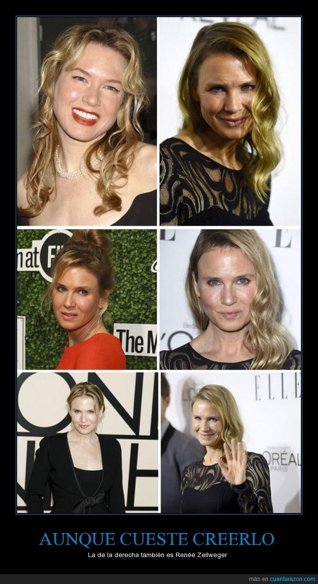 cara,fail,mix entre cayetana,Renée Zellweger,se te ha ido la pinza y las manos en cirugía