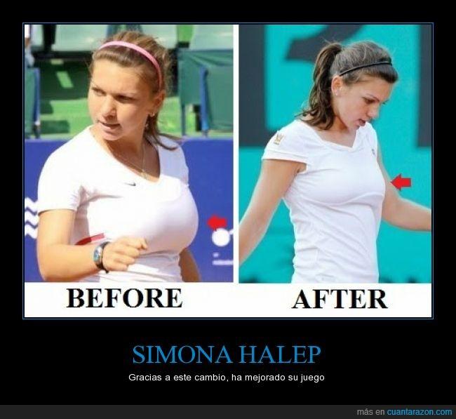 antes y después,jugadora,operacion,reducción,rumanía,salud,tenis