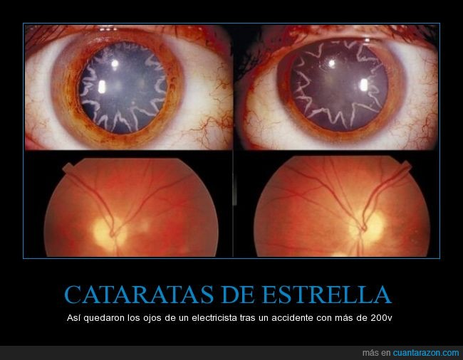 accidente,catarata,electricidad,electricista,electrocutar,iris,ojo,pupila,retina