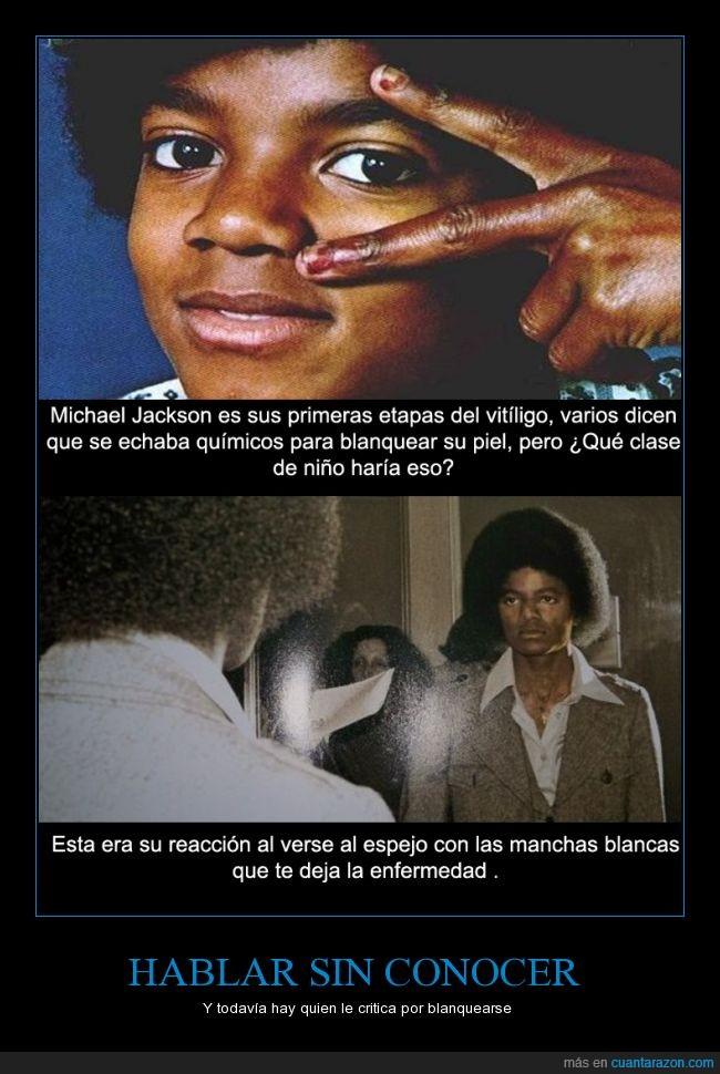 blanco,enfermedad,Michael Jackson,negro,racismo,Vitíligo