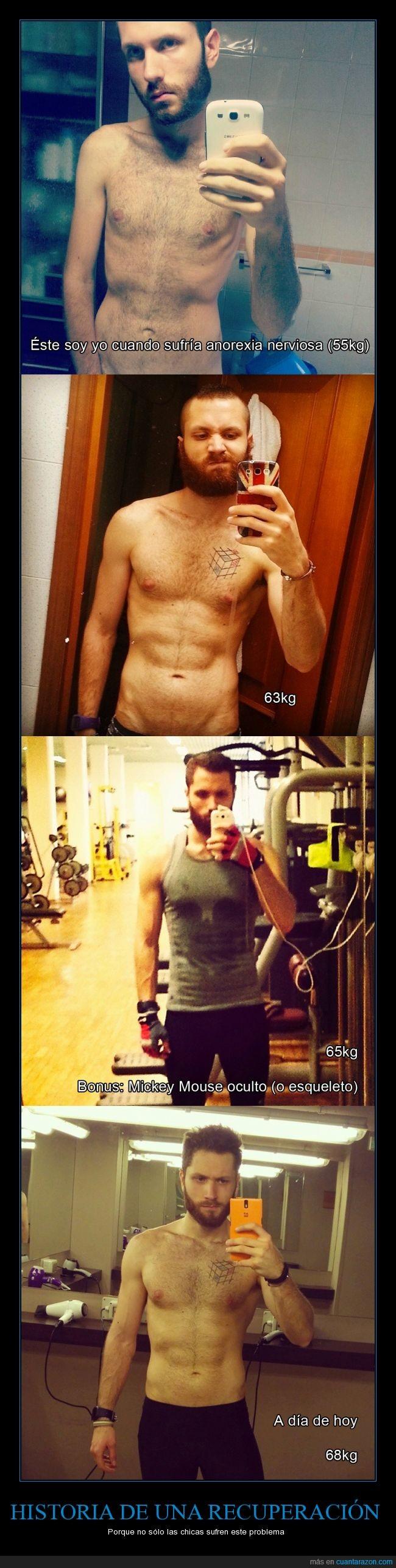 anorexia,anorexico,Antonio Cali,curación recuperación,gimnasio,nerviosa,peso,recuperación,salud,sano