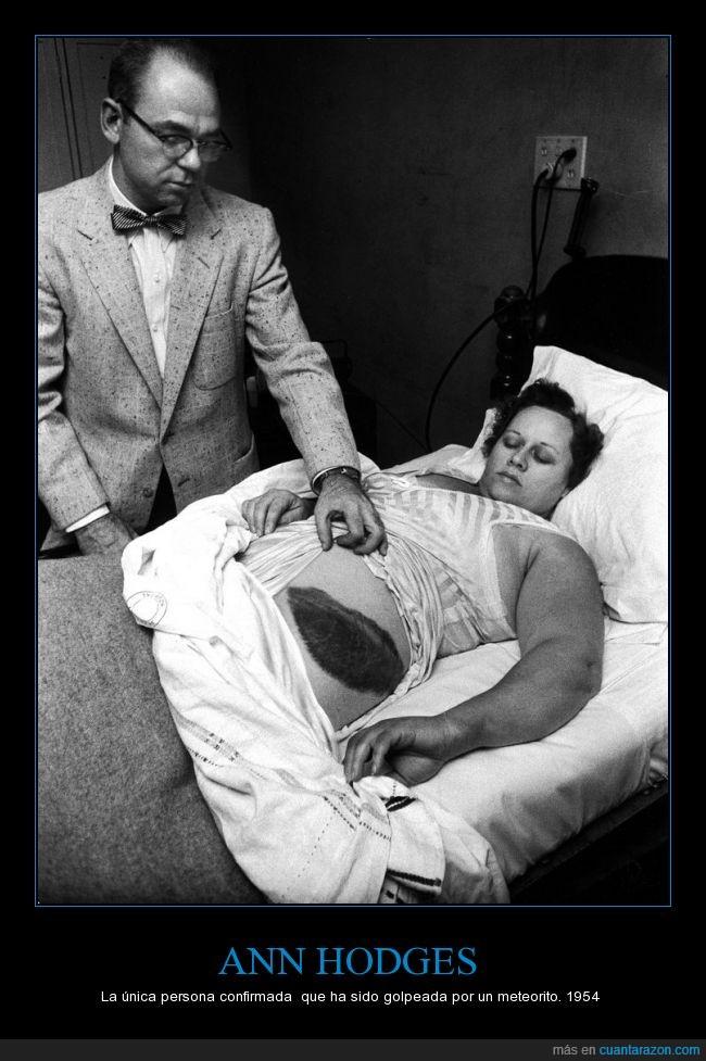 Ann Hodges,después de que fue golpeado por un meteorito. Ella es la única persona confirmada en la historia que,la cadera de su paciente,Moody Jacobs,moretón gigante
