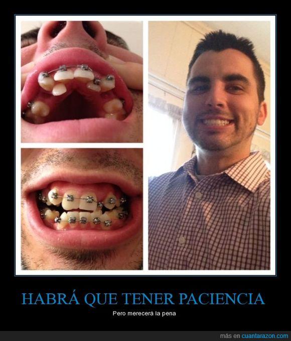 aparatos,arreglar,brackets,chico,dentadura,destrozo,dientes,hierros,sonrisa